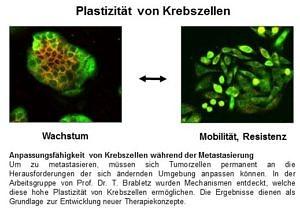 Das Bild verdeutlicht optisch die Forschungstätigkeit von Prof. Brabletz. Es geht um die Anpassungsfähigkeit von Krebszellen während der Metastasierung.