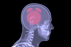 Red alarm clock in head. X-ray render isolated on a black background